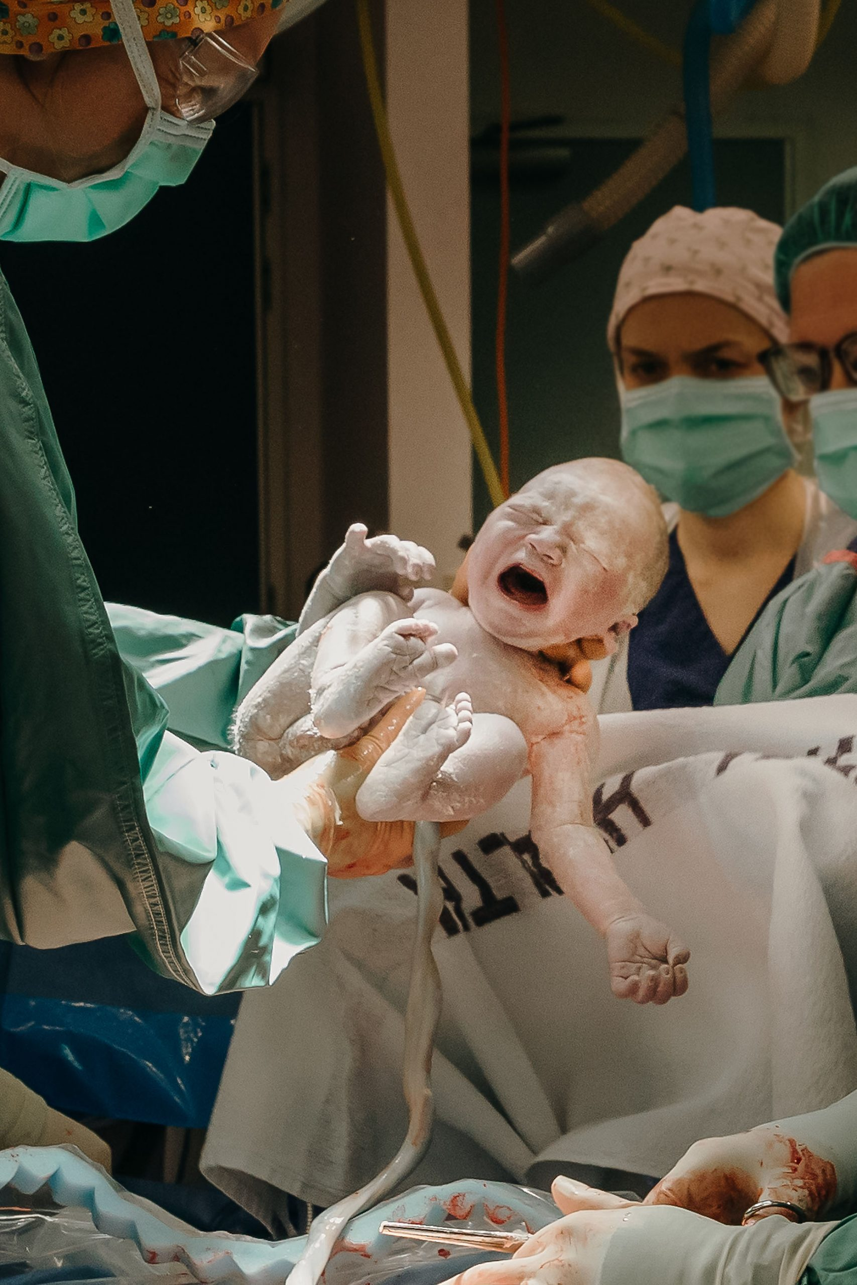 baby born via cesarean section birth photographer christchurch